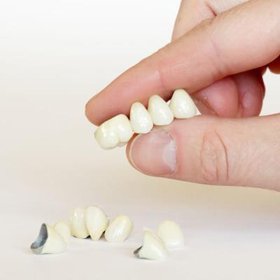 Korony zębowe - implant